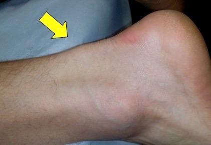 Typische kolbenförmige Verdickung bei Midportion-Tendinose