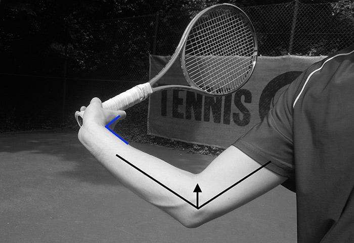 Einwirkender Valgusstress (schwarze Linie) – und Extension des Handgelenks (Bewegung handrückenwärts) in der Ausholbewegung mit Übergang in Beugung (Flexion) und Einwärtsdrehung (Pronation) in der Schlagbewegung.