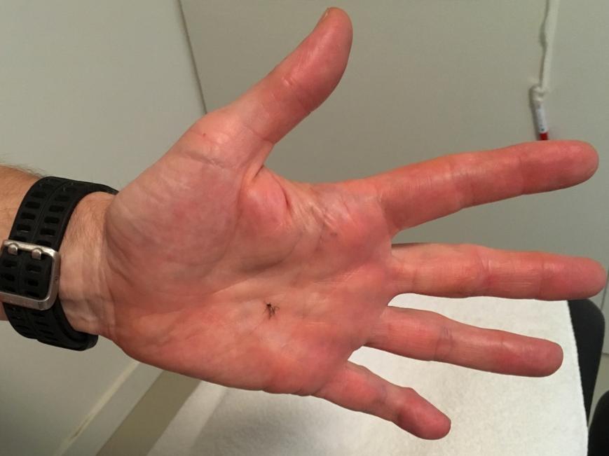 abb4-zika-muecke-hand