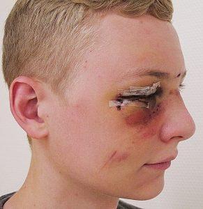Gesichtsverletzungen